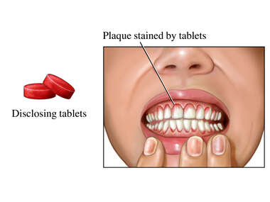 Self-exam for Dental Plaque