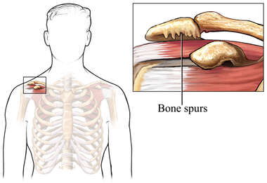 Bone Spur in the Shoulder