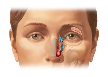 Anatomy of the Lacrimal Apparatus