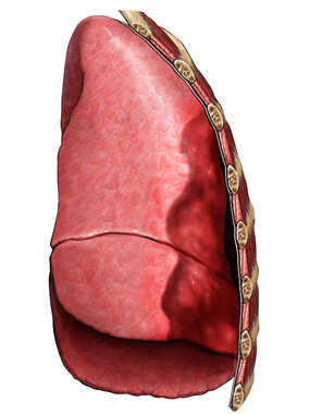 Pneumohemothorax (Blood and Air in the Lung Cavity)
