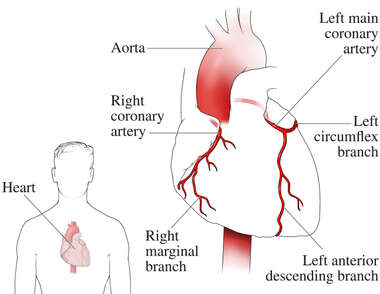 Heart - Coronary Arteries